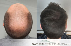 Best Hair Transplant Portland Oregon Hair Replacement Experts
