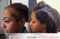 hair loss Nashville