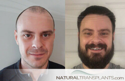 Hair Transplant Cure For Baldness