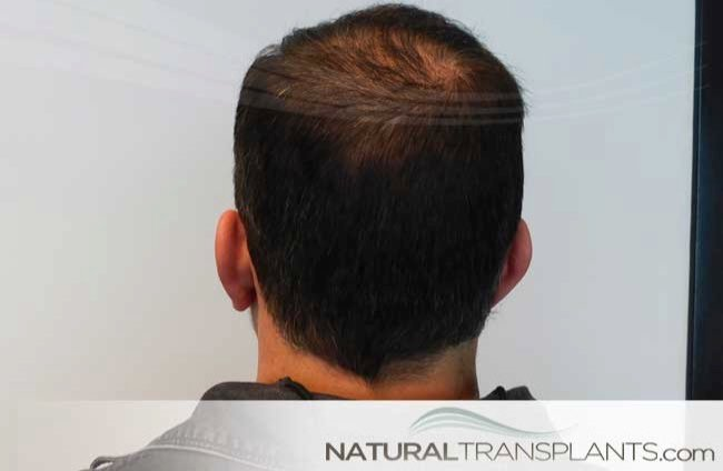 hair-transplant-scar-revision-before-and-after_large_0.jpg