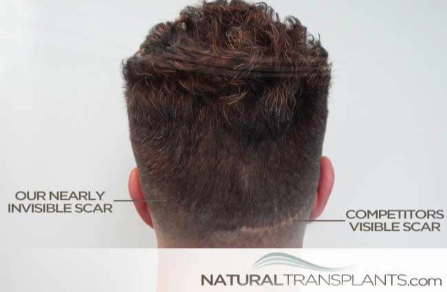 hair-transplant-scar-revision_large_0.jpg