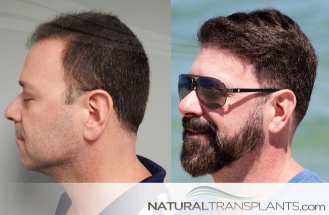 Hair Transplant Before and After Images - Norwood 3 Will Arnett Hair Transplant Before And After