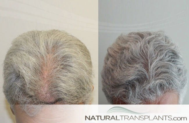 We Only Transplant Hair | Visit our website and learn about Hairline Surgery hair-loss-shampoo_large_0