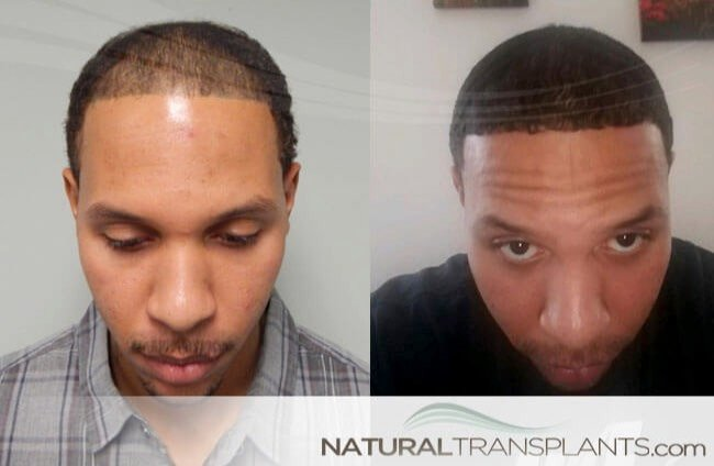 hair-transplant-before-and-after_large_0.jpg