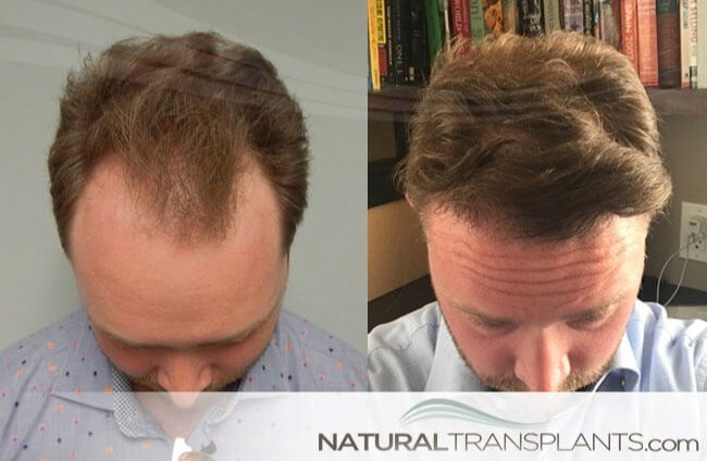 We Only Transplant Hair | Visit our website and learn about Transplant Hair neograft_large_0