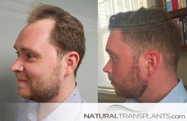 Transplantation of Hair | Visit our website and learn about