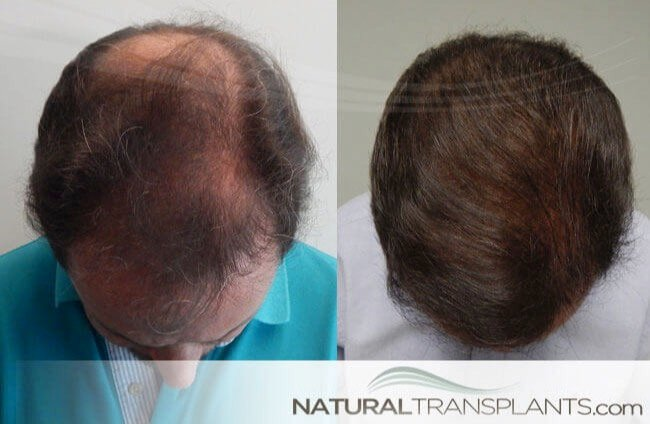 best-hair-growth-products_large_0.jpg