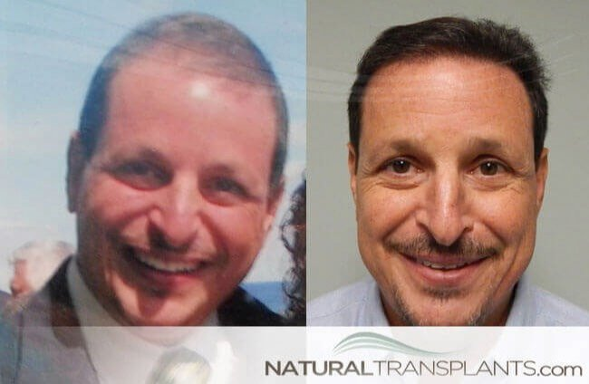 Hair Transplant Before And After Images Norwood 4