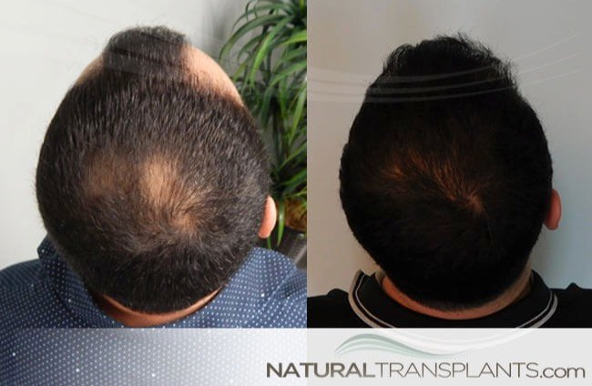 hair-replacement-systems_large_0.jpg