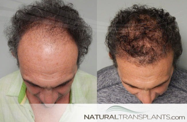 how-much-does-hair-transplant-cost_large_0.jpg