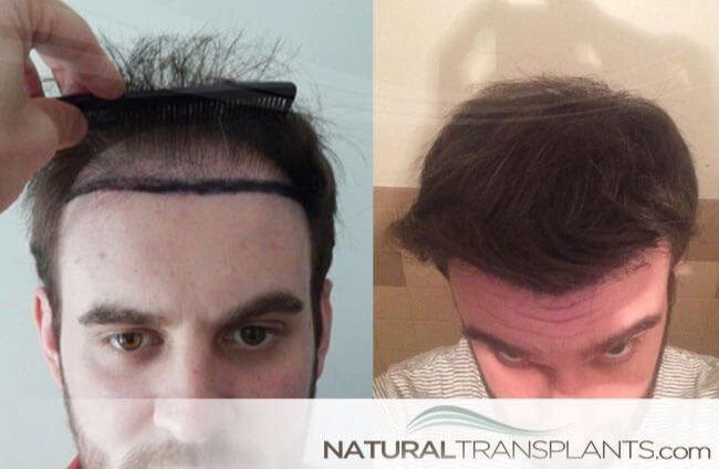 laser-hair-growth_large_0.jpg