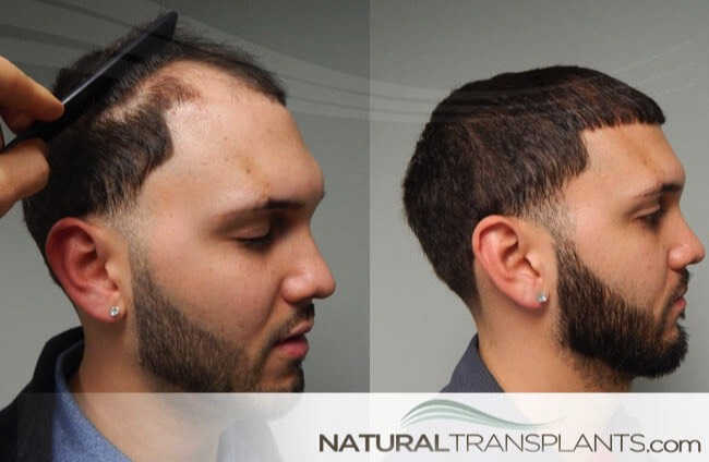 vitamins-for-hair-loss_large_0.jpg
