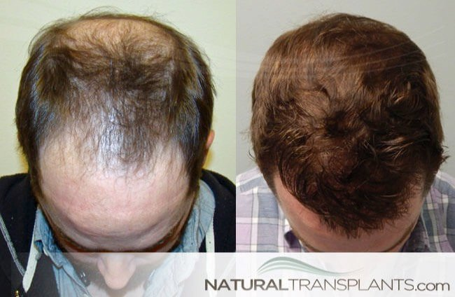 Get Free InformationHair Implants Near Homestead, FL baldness-cure_large_0