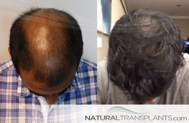 hair-growth-remedies_large_0 Miami Hair Transplant
