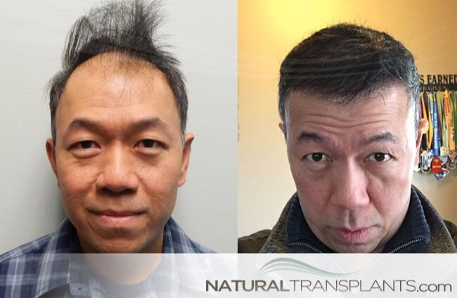 Hair Transplant Before And After Images Norwood 5
