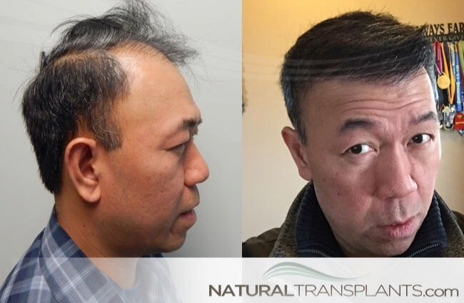hair-loss-cure_large_0 Miami Hair Replacement Center