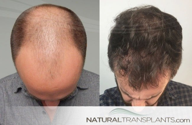 haircuts for with thin hair month 9 hair transplant thin hair month 9 hair transplant 3287